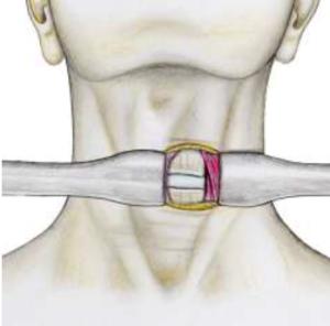 voie d'abord rachis cervical SFCR Denux