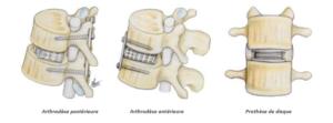 chirurgie de la discopathie dégénérative SFCR Denux