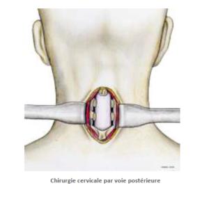 chirurgie cervicale par voie postérieure SFCR Denux