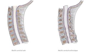 myélopathie cervicarthrosique sfcr Denux